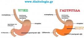 Γαστρίτιδα και διατροφή