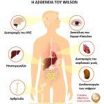 Ασθένεια του Wilson και διατροφή