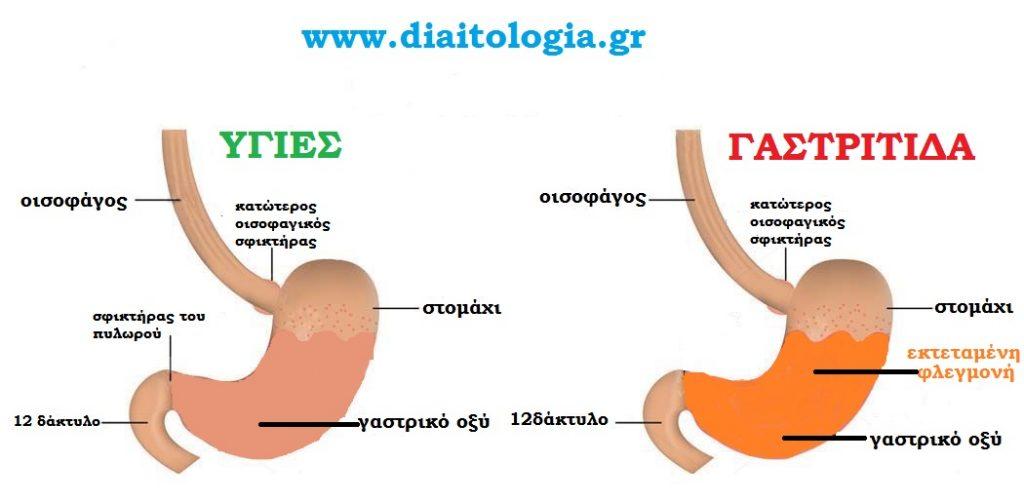 γαστρίτιδα