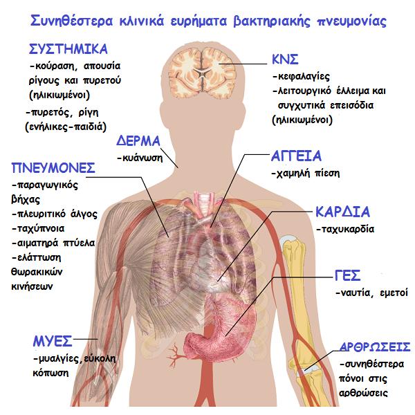 βακτηριακή πνευμονία